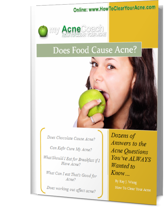 Does Food Cause Acne Product Book2
